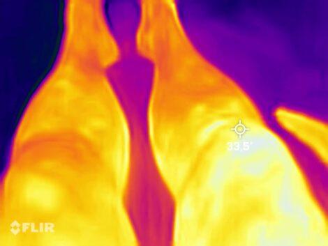 Bruised-knee-through-infrared-camera